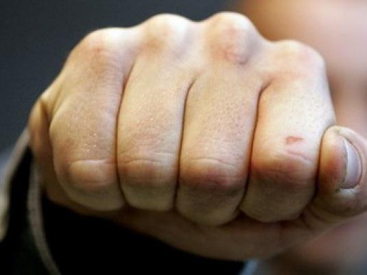 Нетрезвый парень избил 2-х оскорбивших его девушку молодых людей